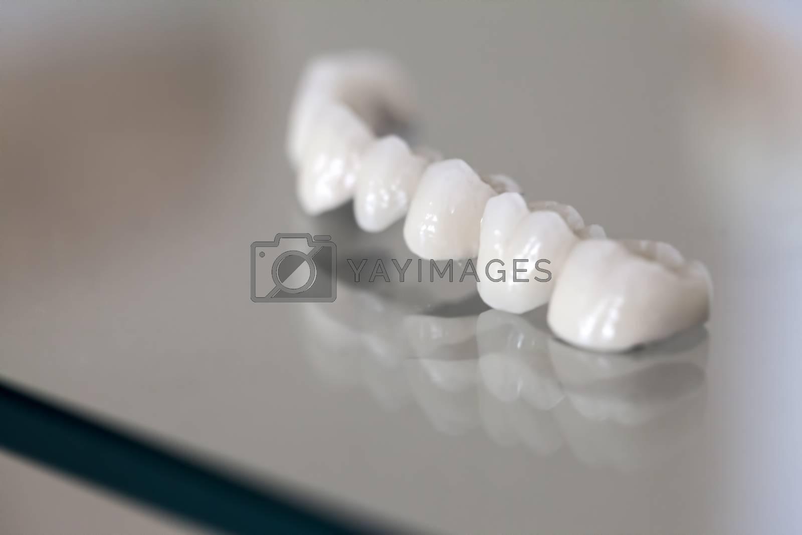 Royalty free image of Zirconium Porcelain Tooth plate in Dentist Store by okanakdeniz