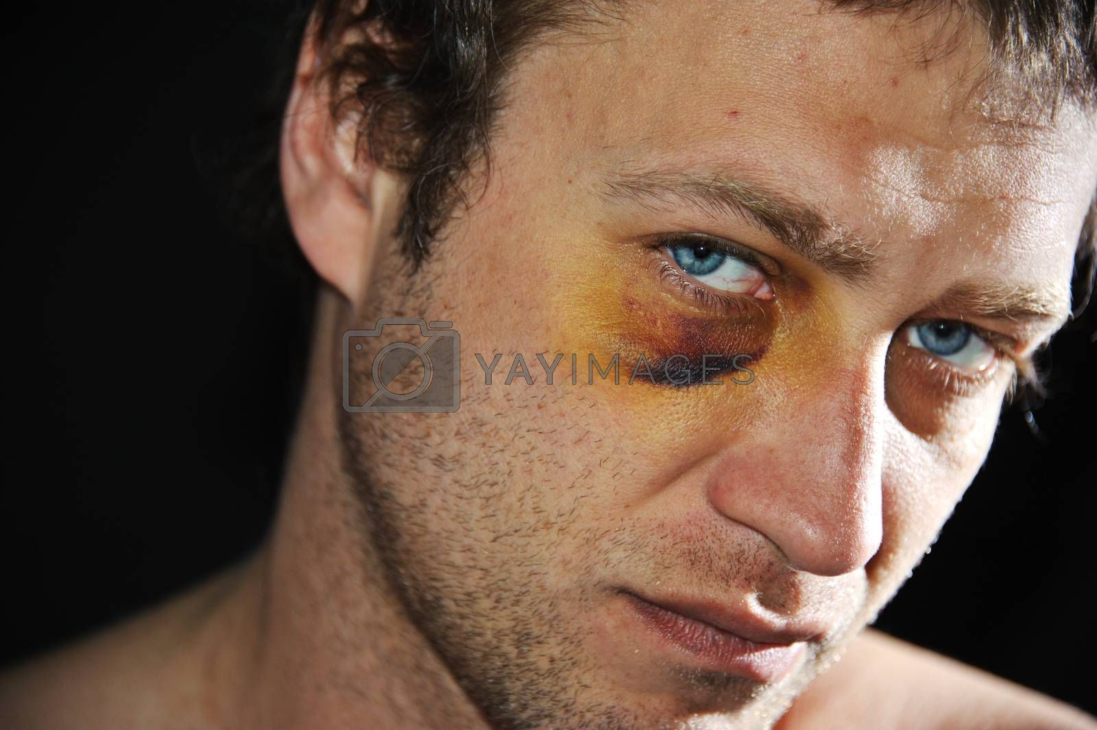 Bruised eye. by bashta