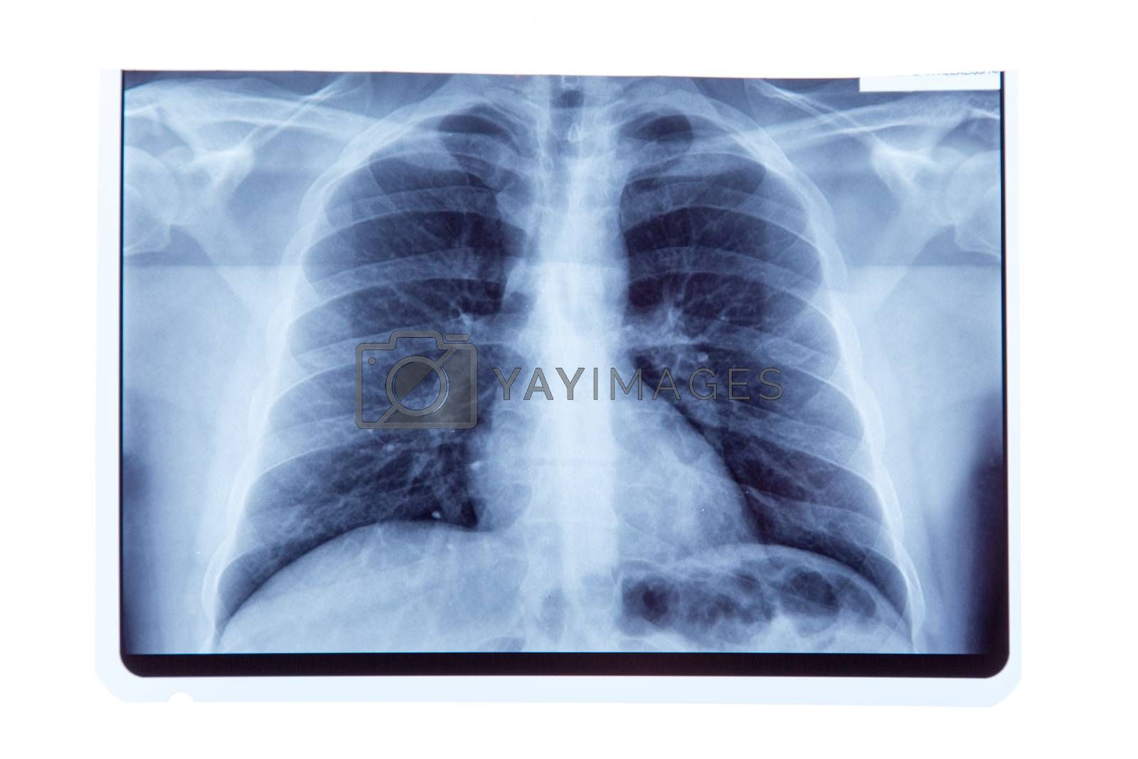 Lung radiography x-ray result, isolated on white background