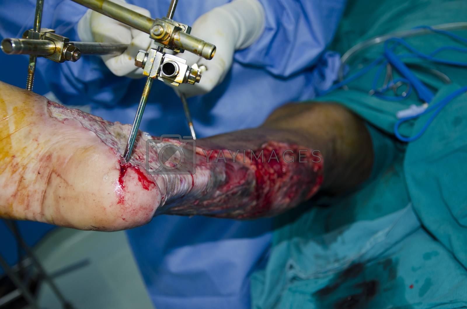 Leg ulcers by jee1999