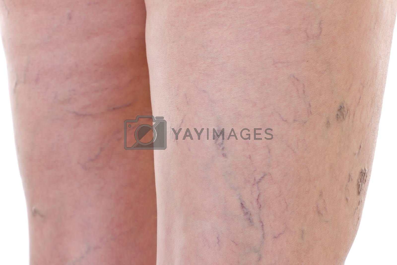 Close-up of legs with varicose veins
