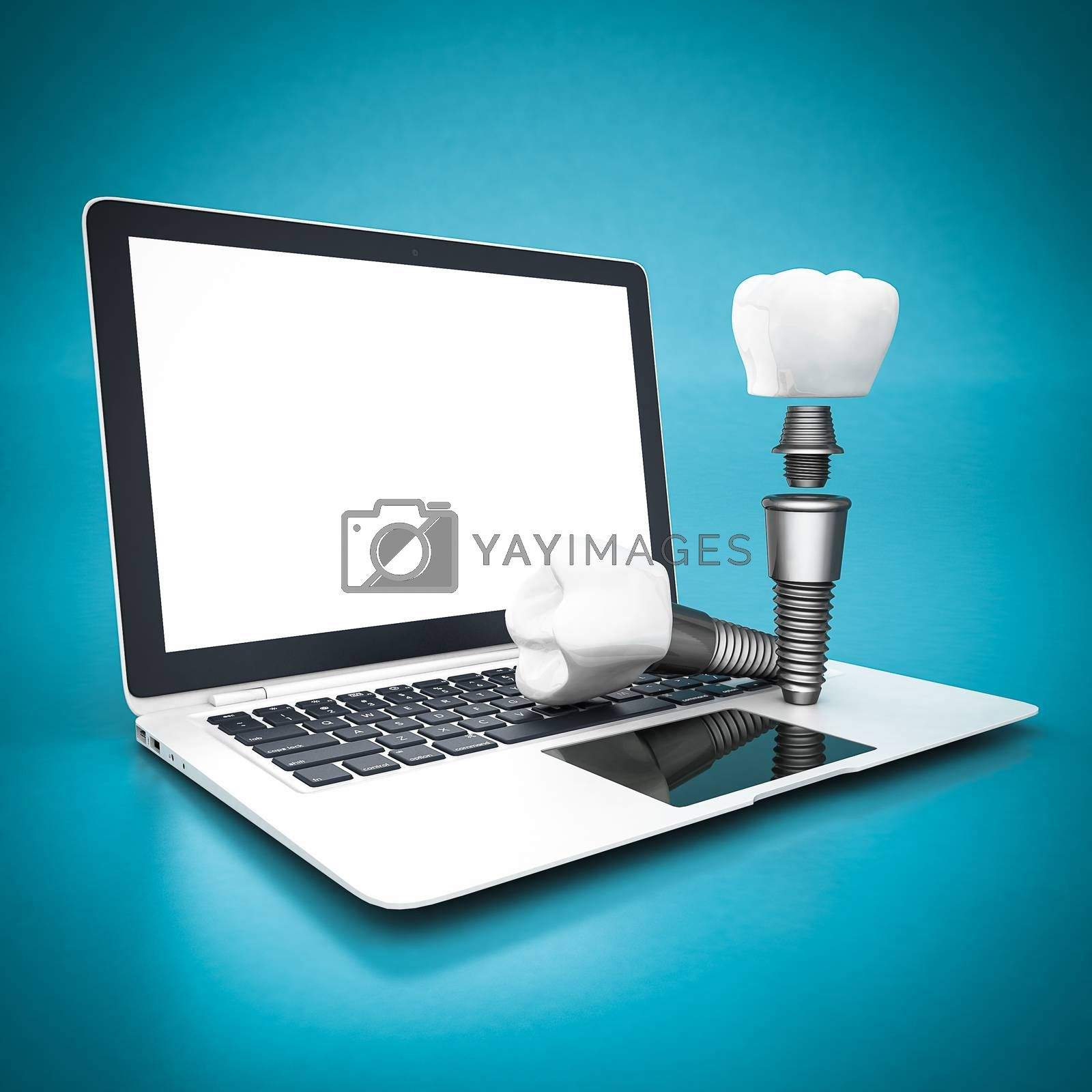 picture of dental implants on a white background