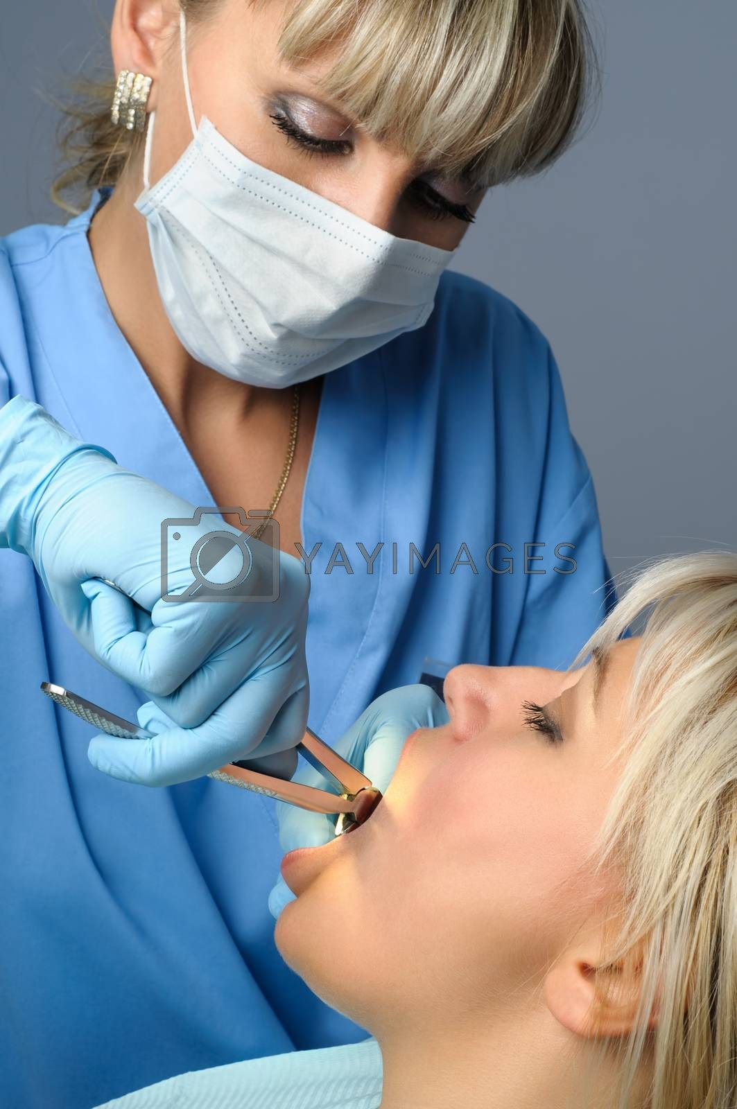 Dentist at work, tooth extraction using forceps