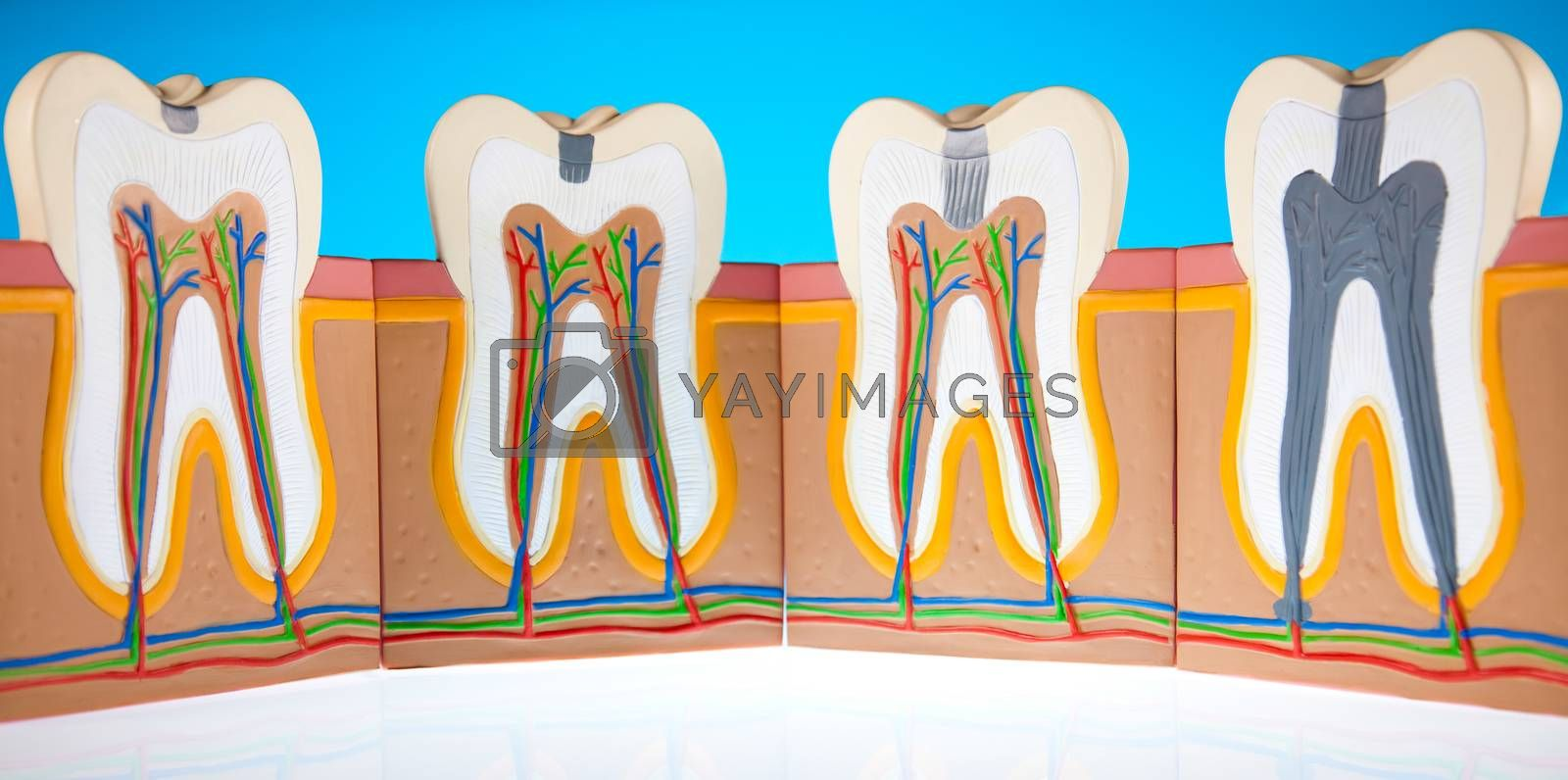 Human tooth structure, bright colorful tone concept by JanPietruszka