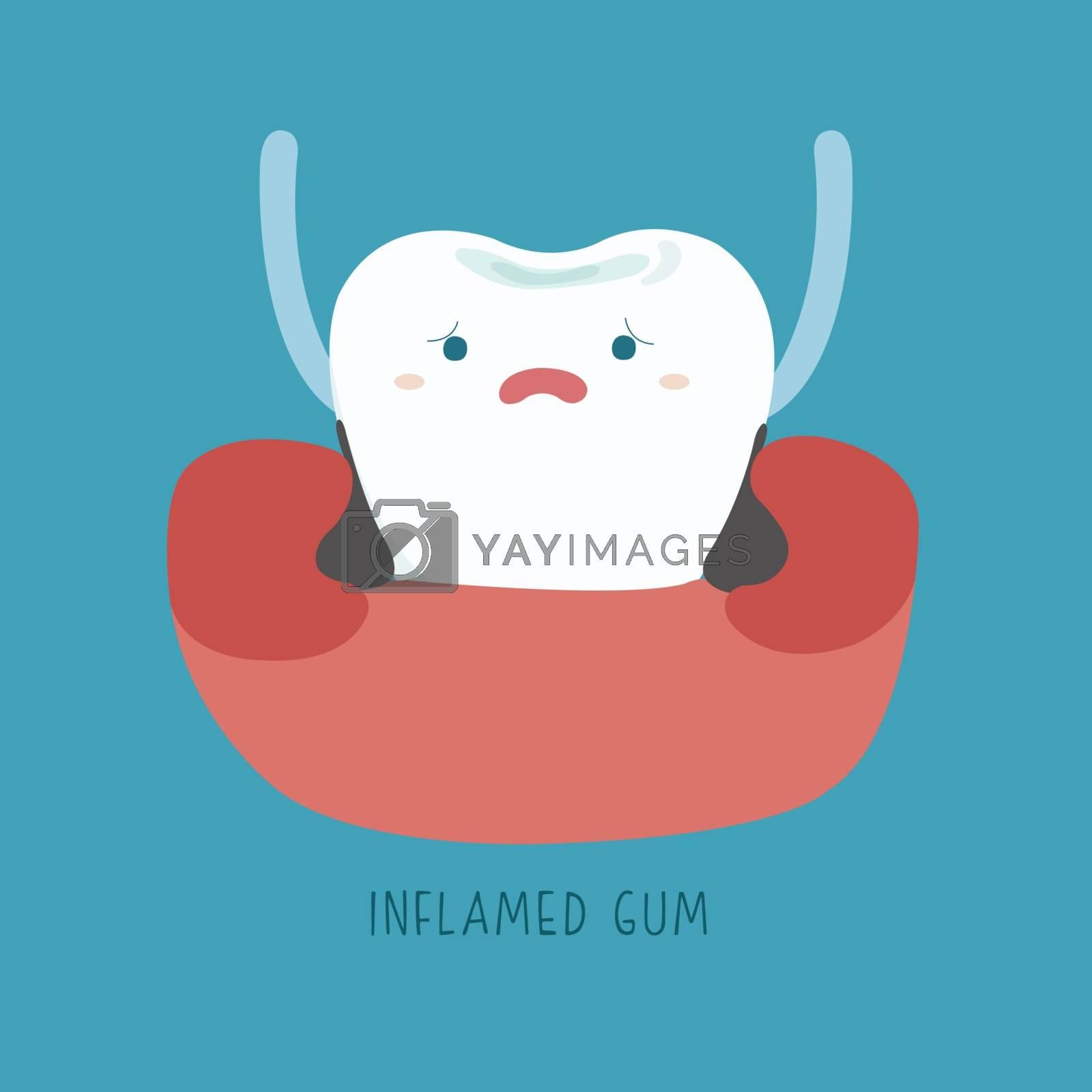 Inflamed gum of dental Illustrator