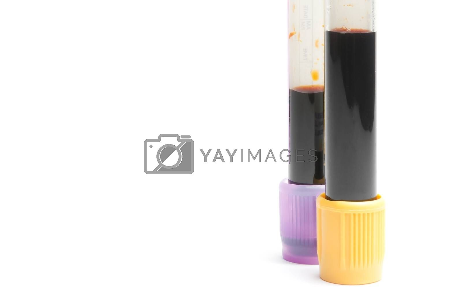 medical test tubes in laboratory with space for text on white background
