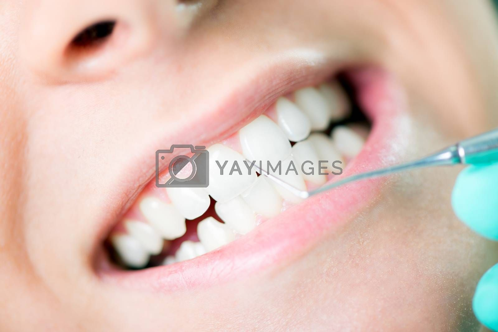 Close-up of Dentist examination and cleaning patient teeth with metal dental pick tool.
