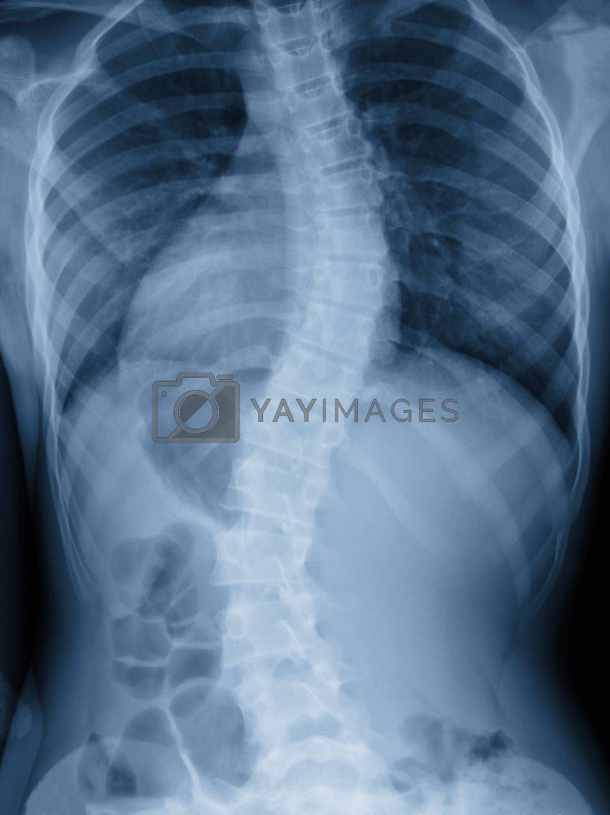 Scoliosis film x-ray show spinal bend in teenager patient