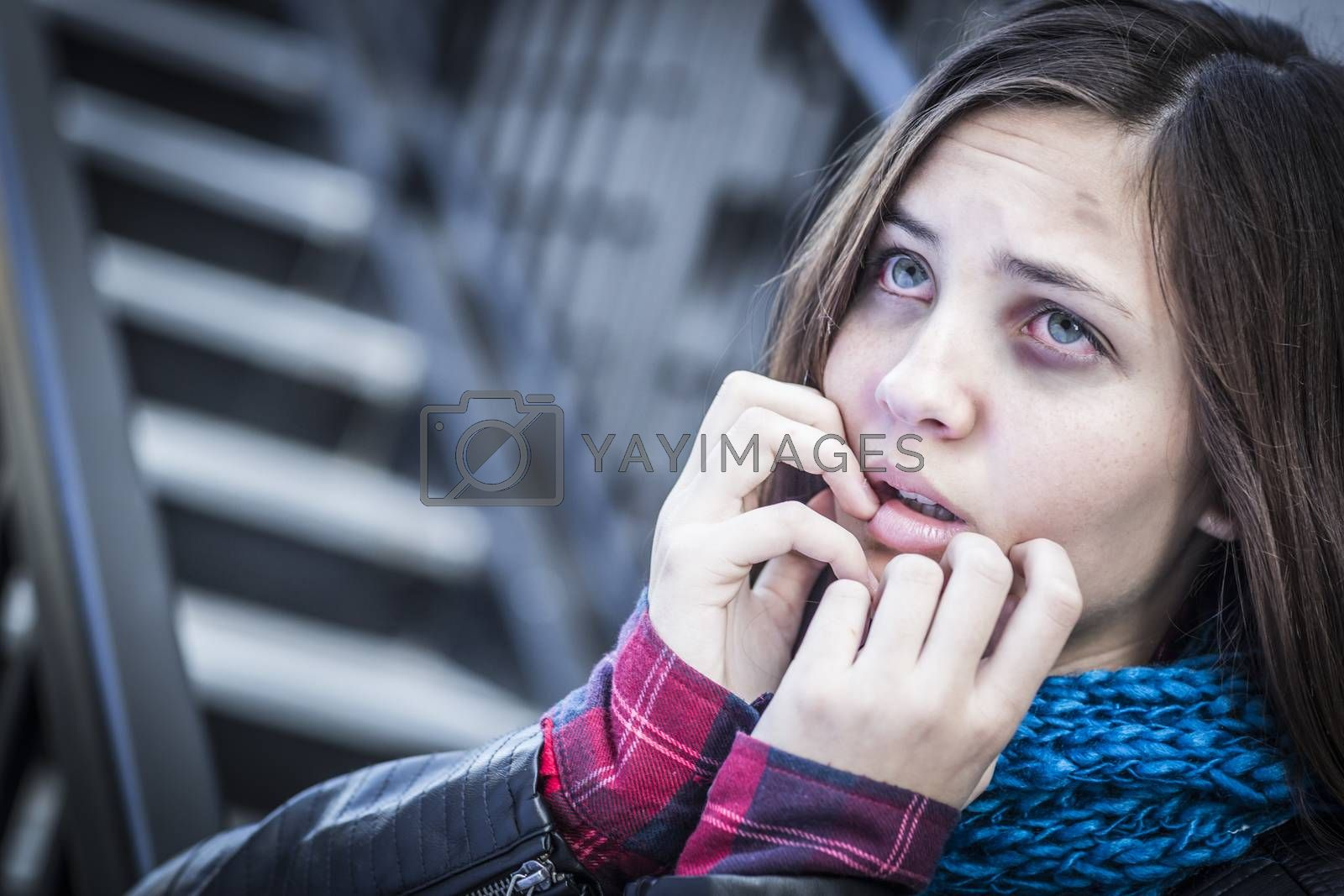 Royalty free image of Young Bruised and Frightened Girl on Staircase by Feverpitched