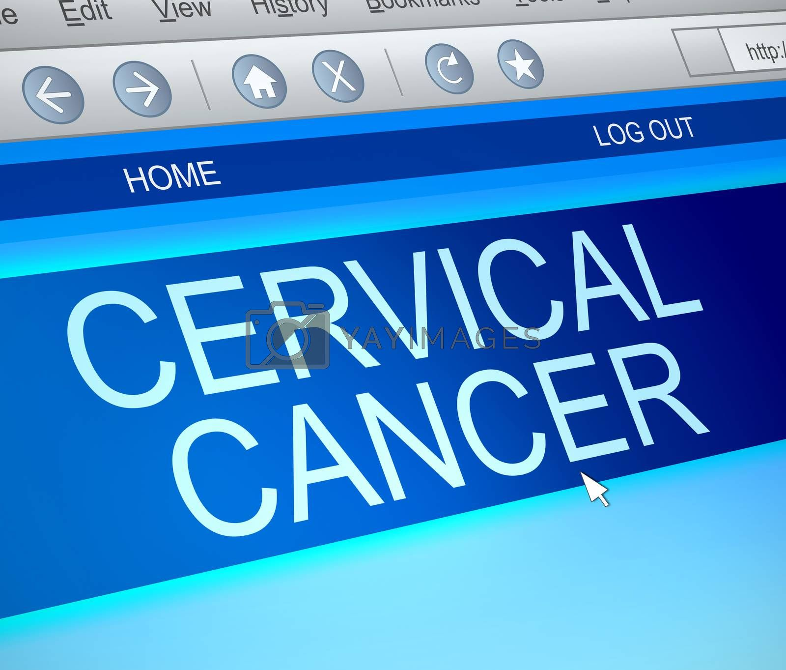 Illustration depicting a computer screen capture with a cervical cancer concept.
