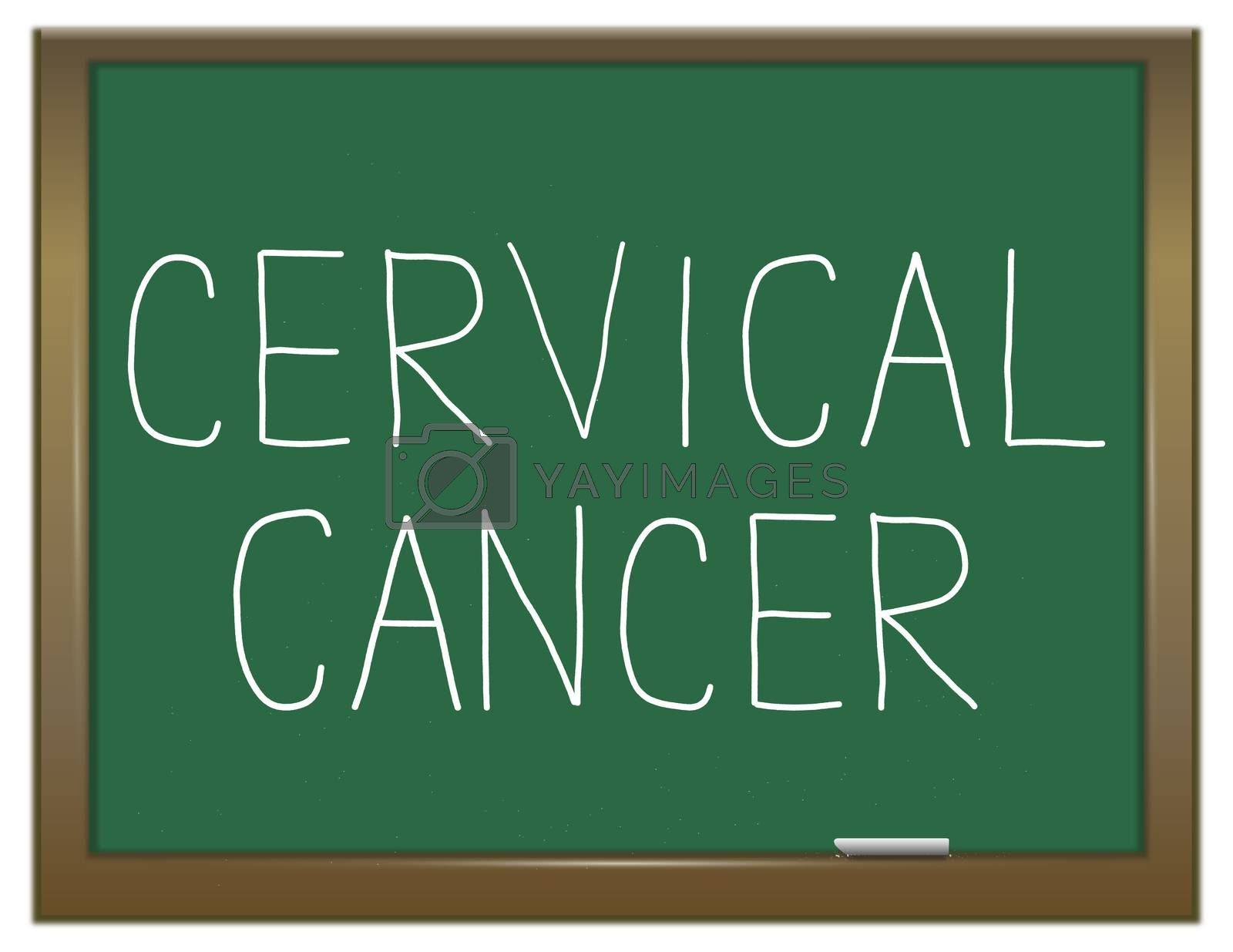 Illustration depicting a green chalkboard with a cervical cancer concept.