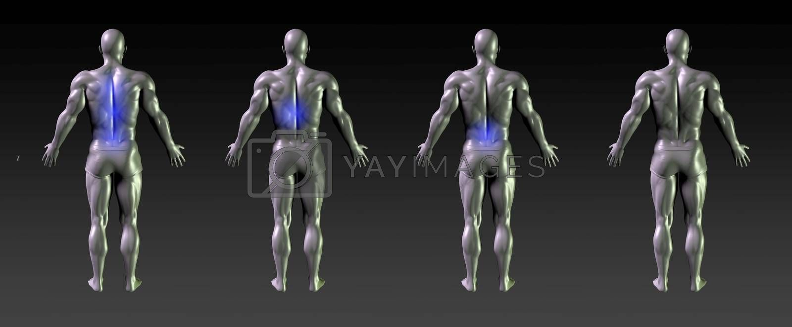 Spine Recovery or Rehabilitation with Blue Glow