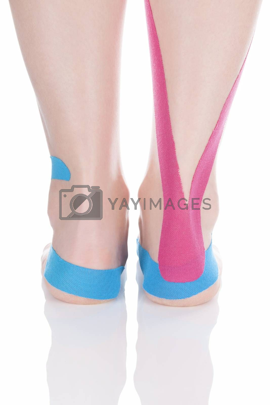 Therapeutic tape on female calf isolated on white background. Chronic pain, alternative medicine. Rehabilitation and physiotherapy. Calf pain.
