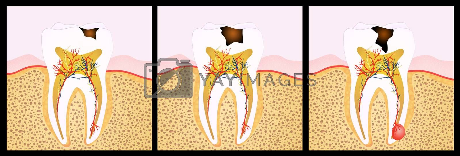 illustration of tooth decay scheme