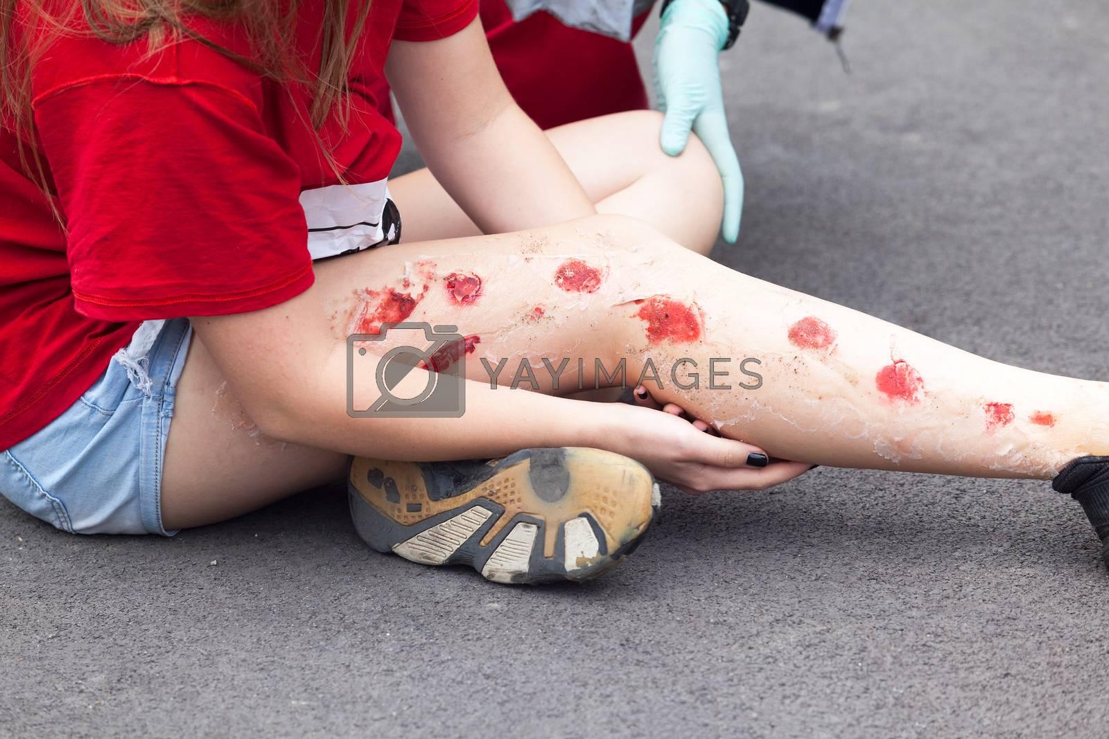Simulation of leg injury. First aid training.