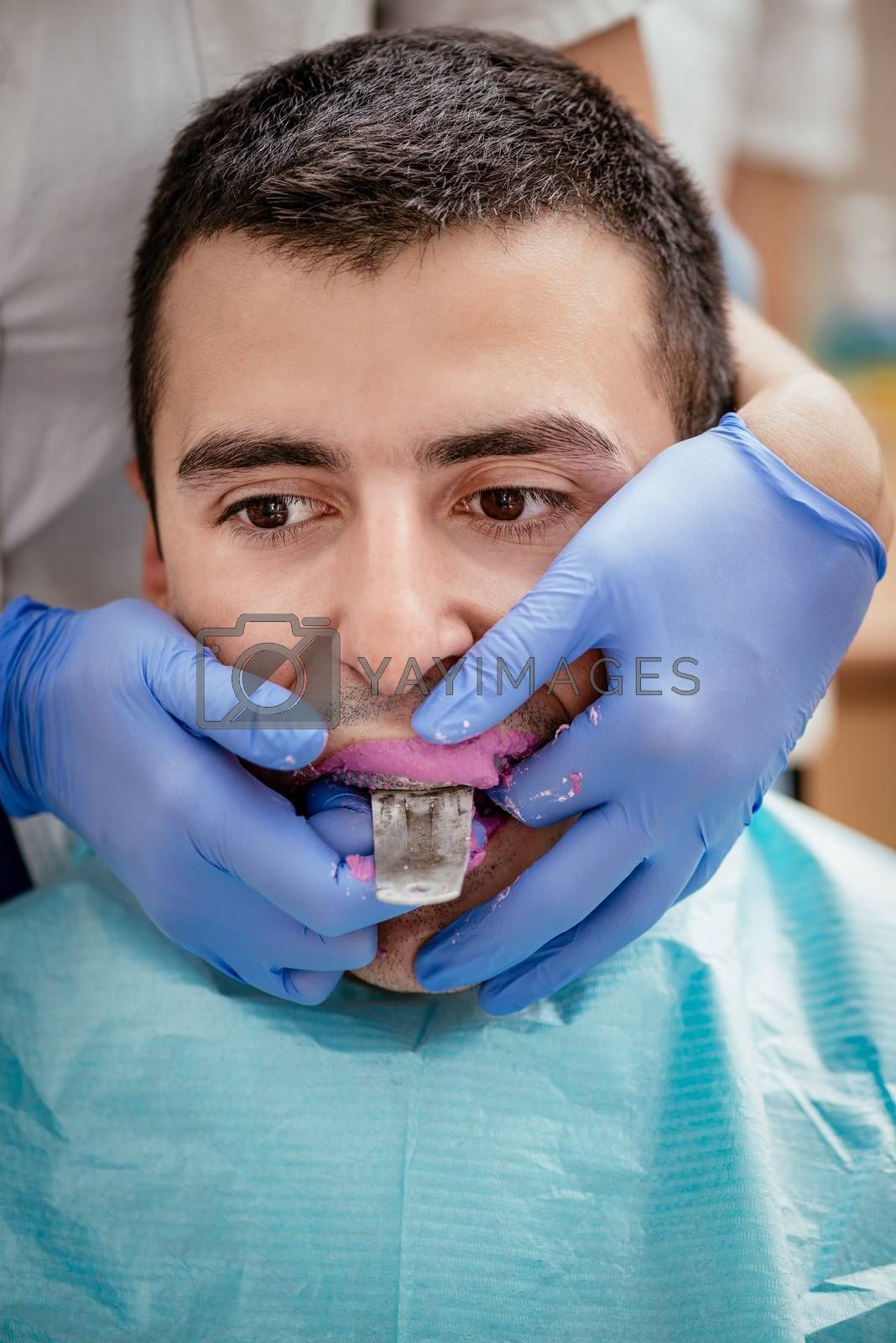 Dentist using dental impression for braces to the male patient. Close-up. Real people.
