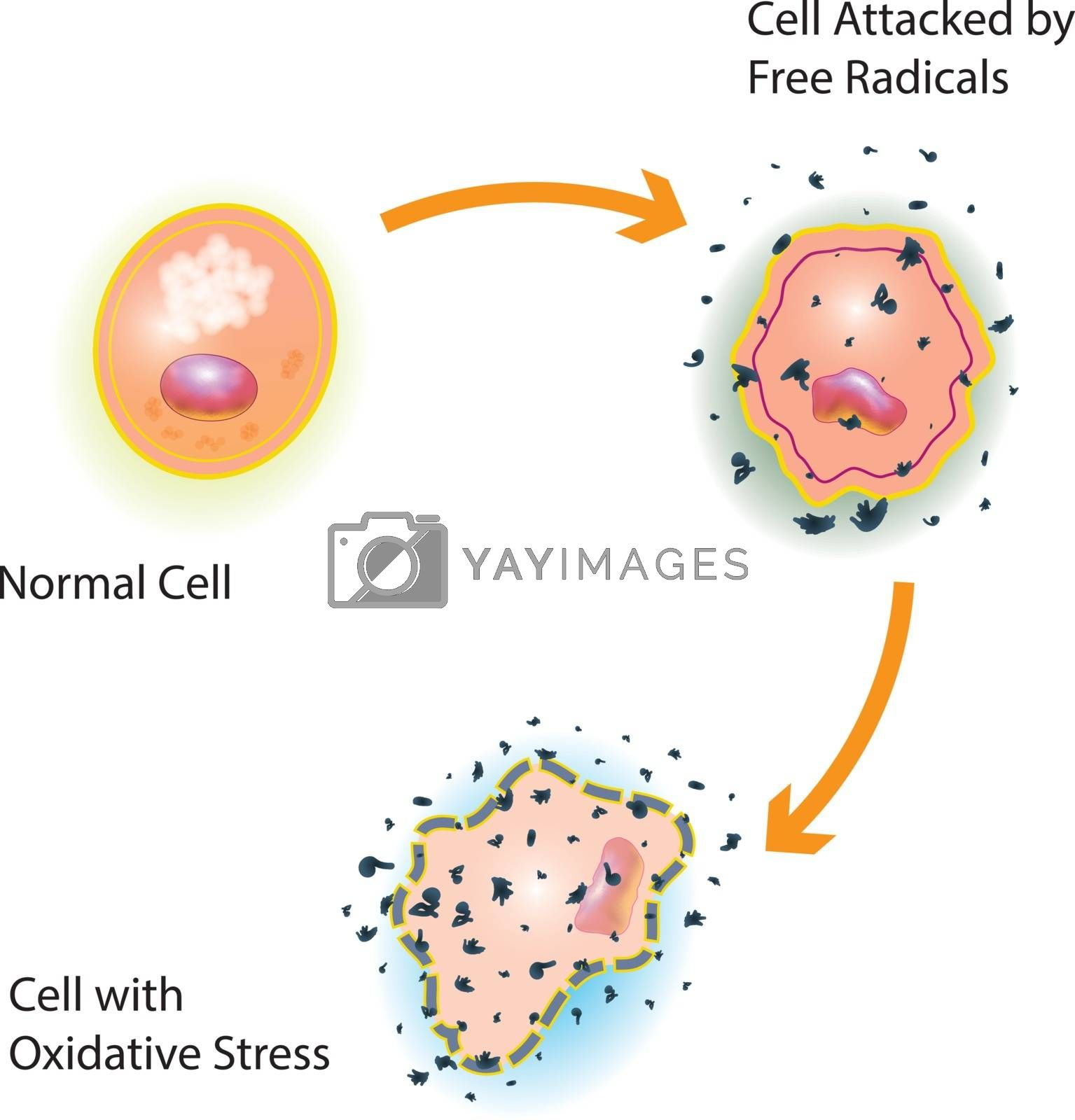 Oxidative stress of a healthy cell caused by an attack of free radicals