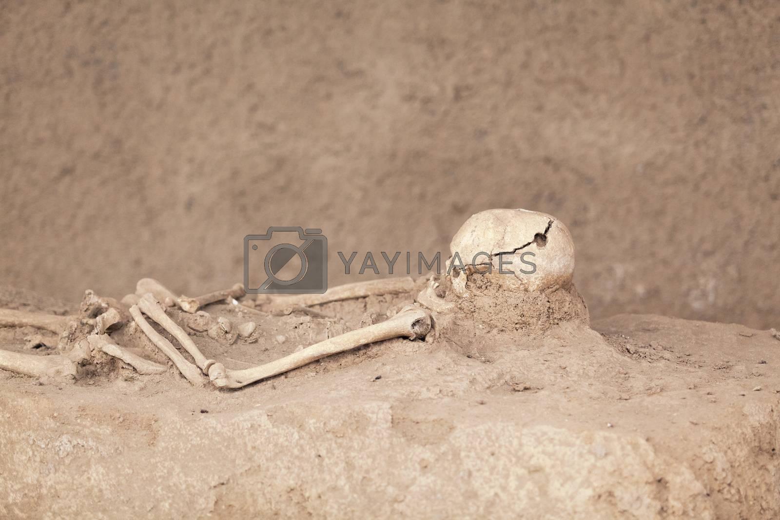 Trepanned skeleton