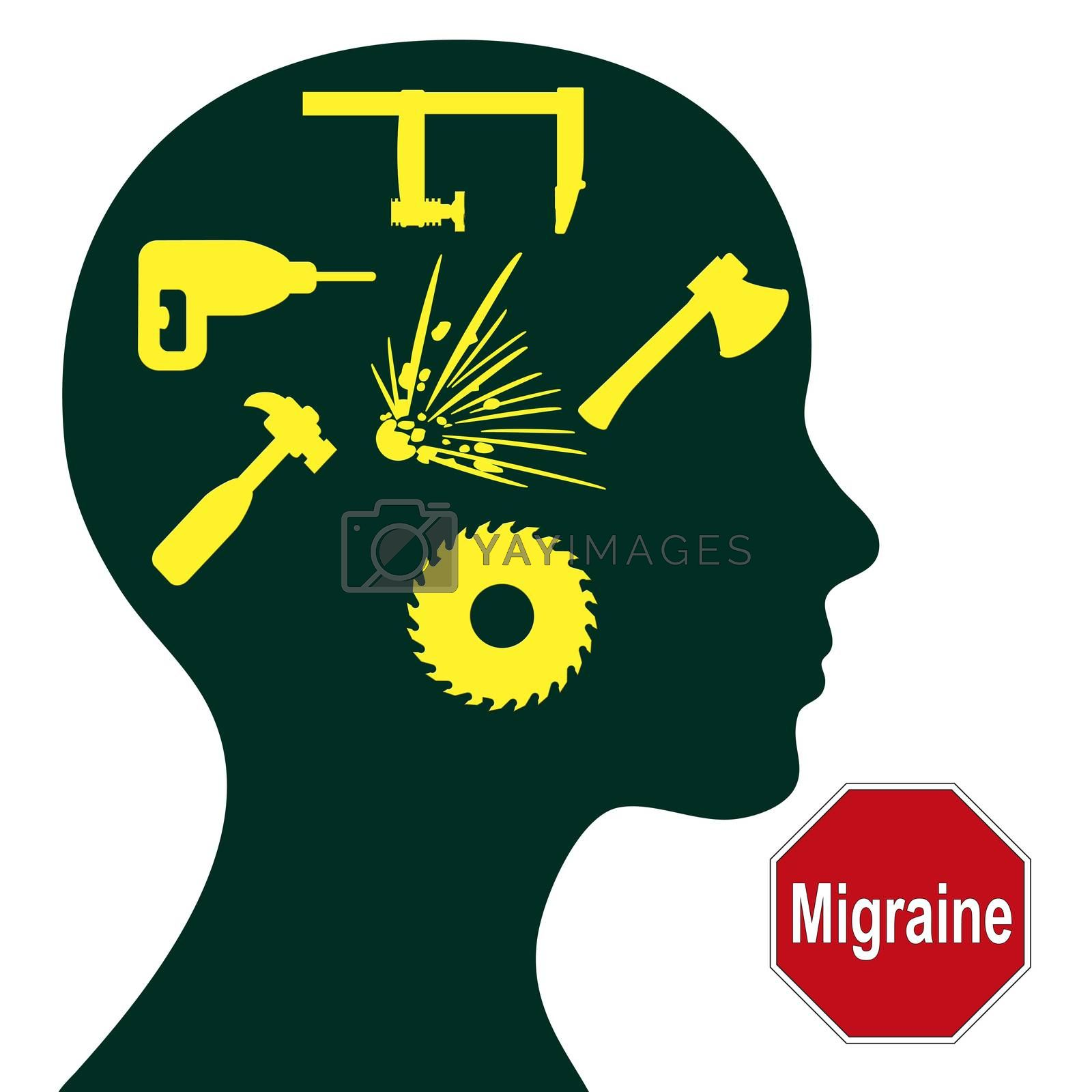 Migraine. Severe headache with different symptoms and signs