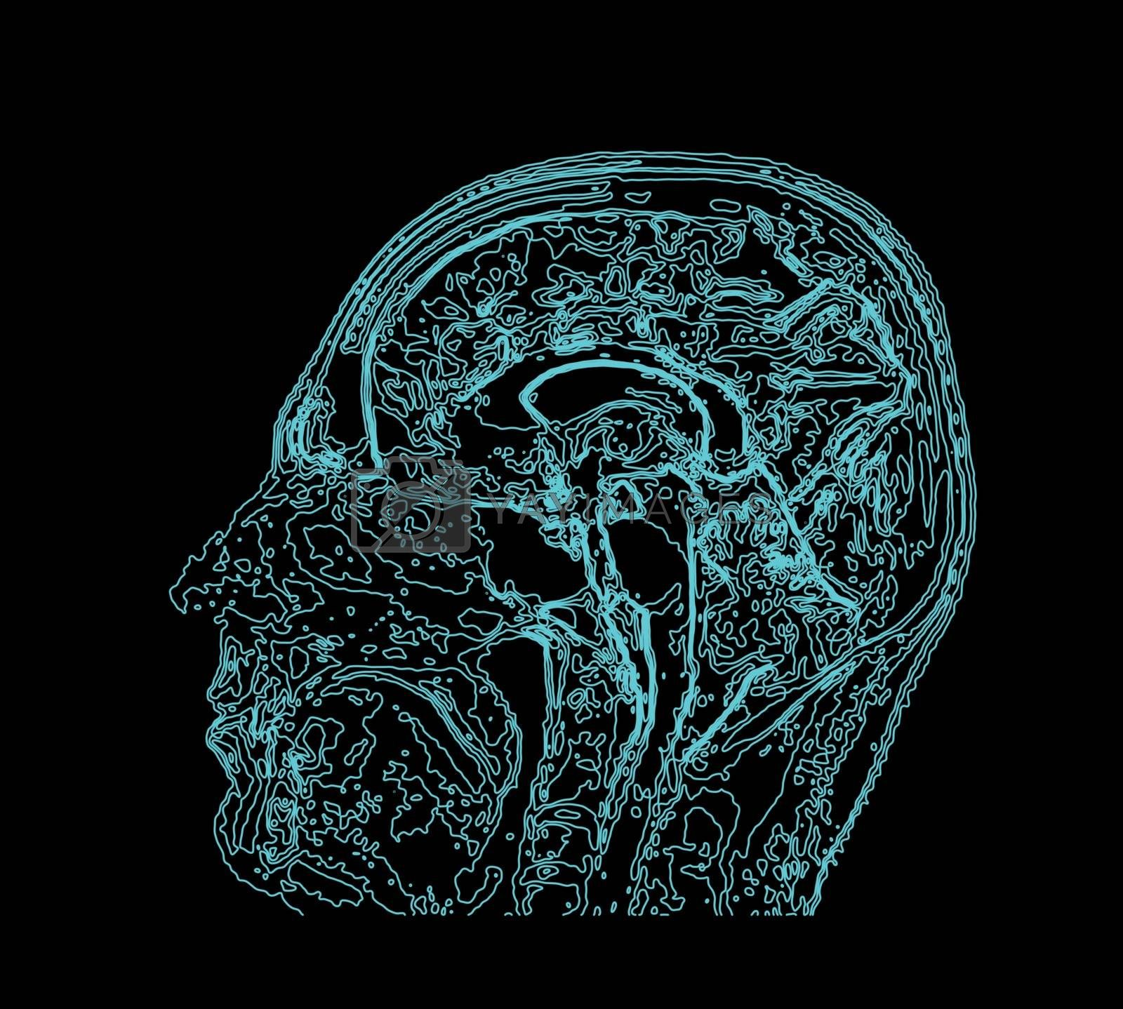 Royalty free image of Topographic map MRI of the human brain. by sermax55