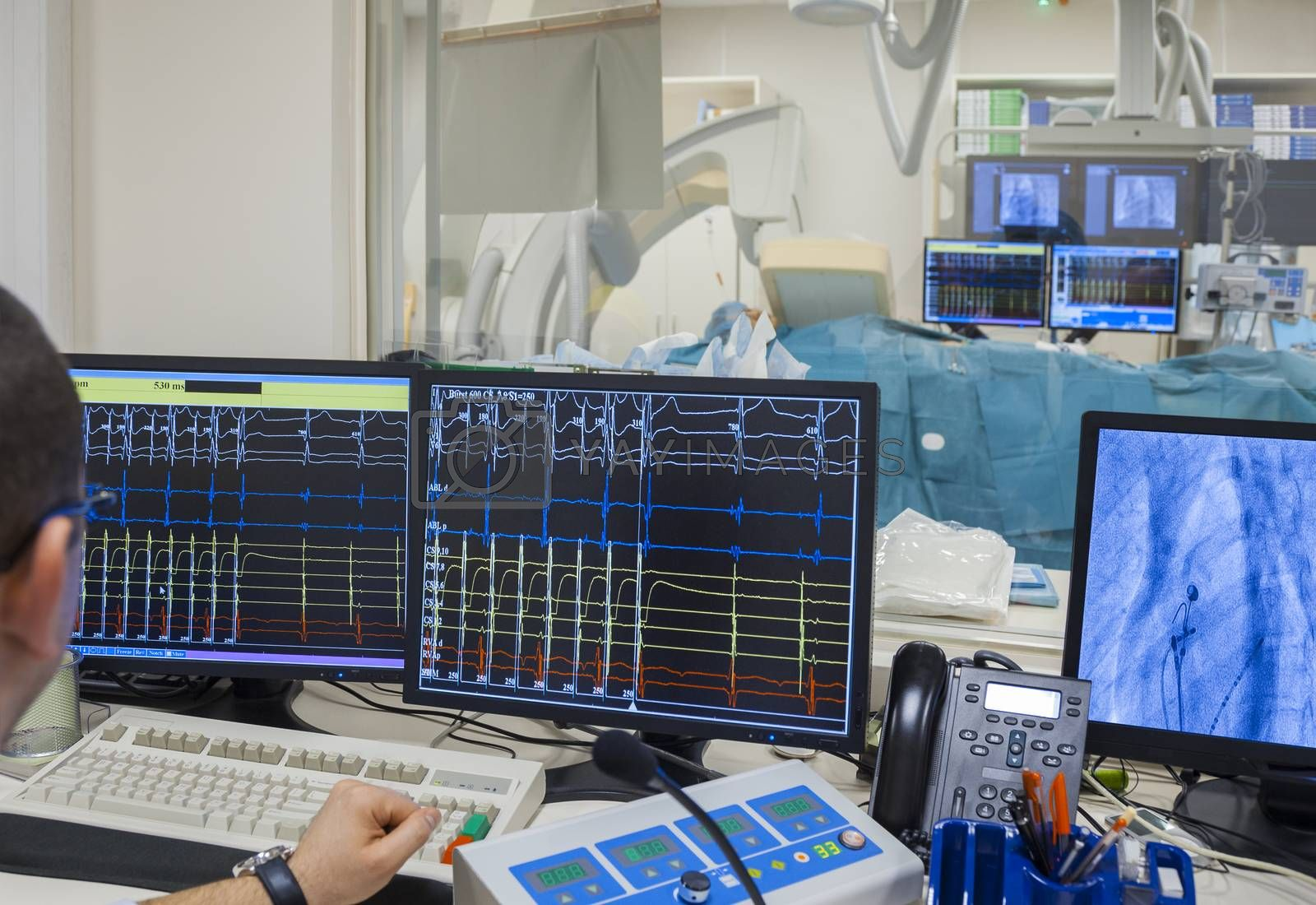 Monitors with heartbeat rate and x-ray image in modern hospital operating room.