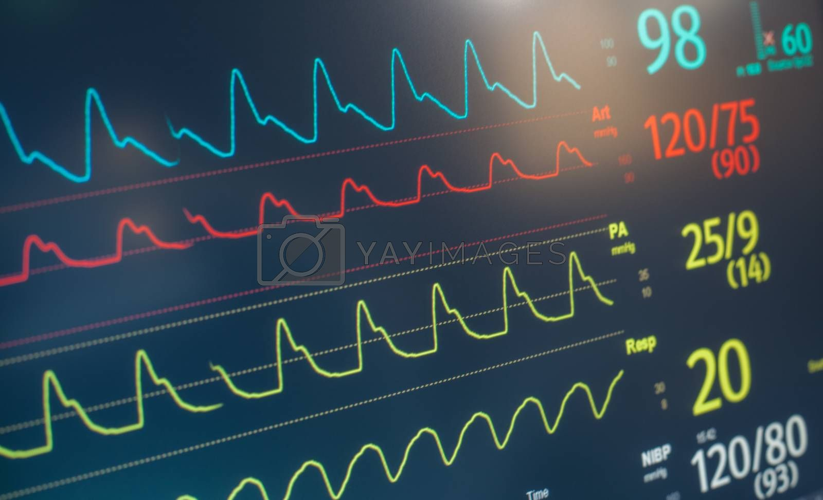 A hospital monitor with heart rate, pulse and respiratory data.