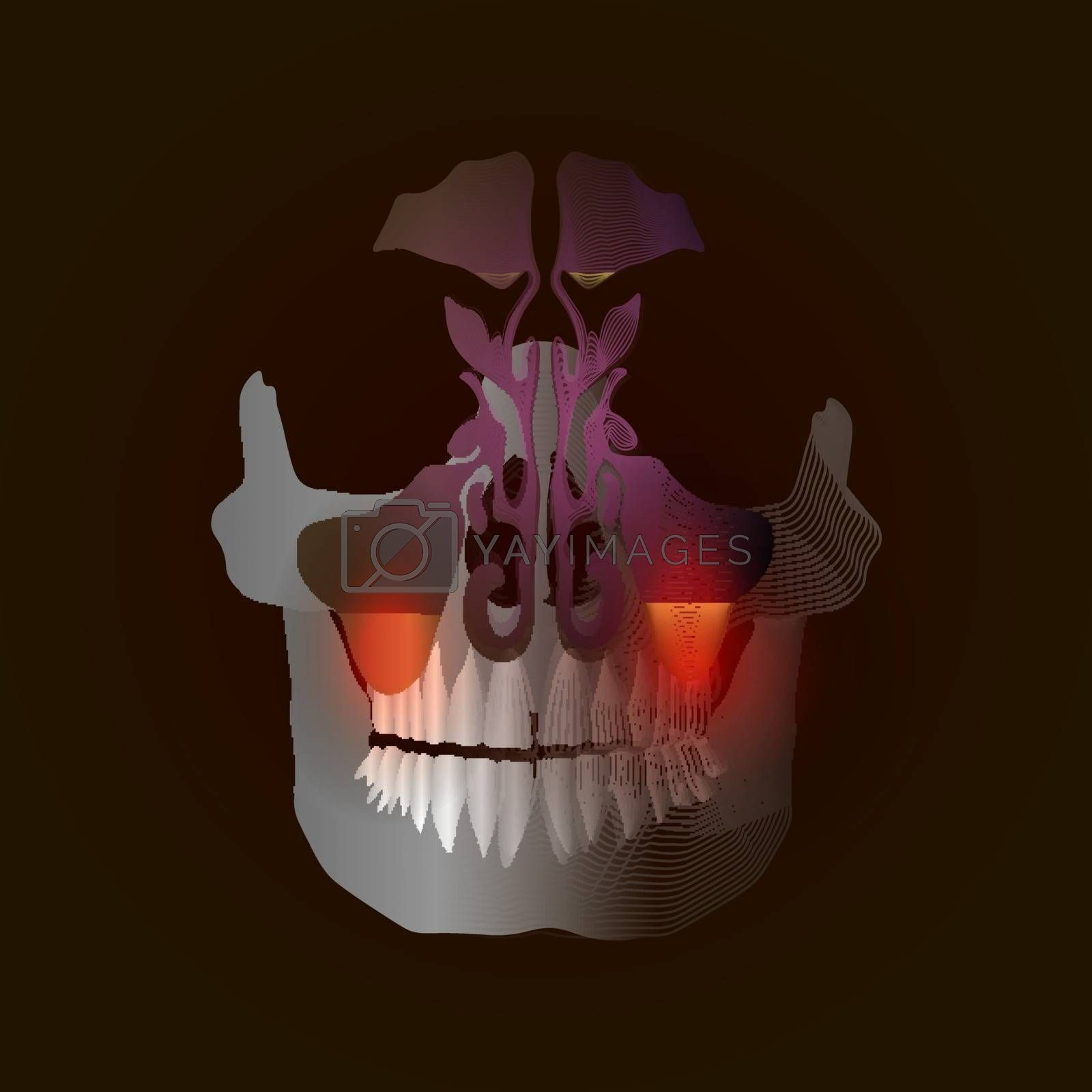 The transition from a real image to a linear x-ray effect with a point of pain and inflammation. Odontogenic sinusitis. Inflammation of the maxillary sinuses due to a disease of the roots of the tooth with a point of pain and inflammation. 10 eps