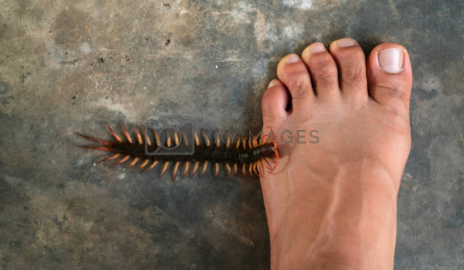 People were bitten by a centipede on their feet  by anankkml