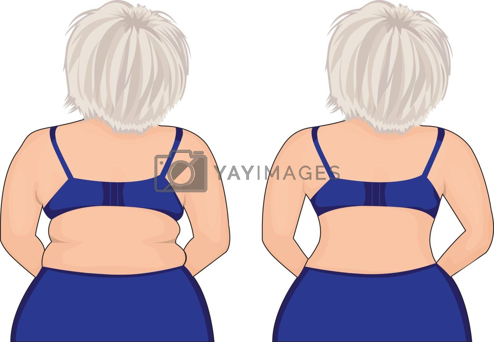 Fat and slim girl's back. Fat thig. Liposuction. Before and after. by Olena758