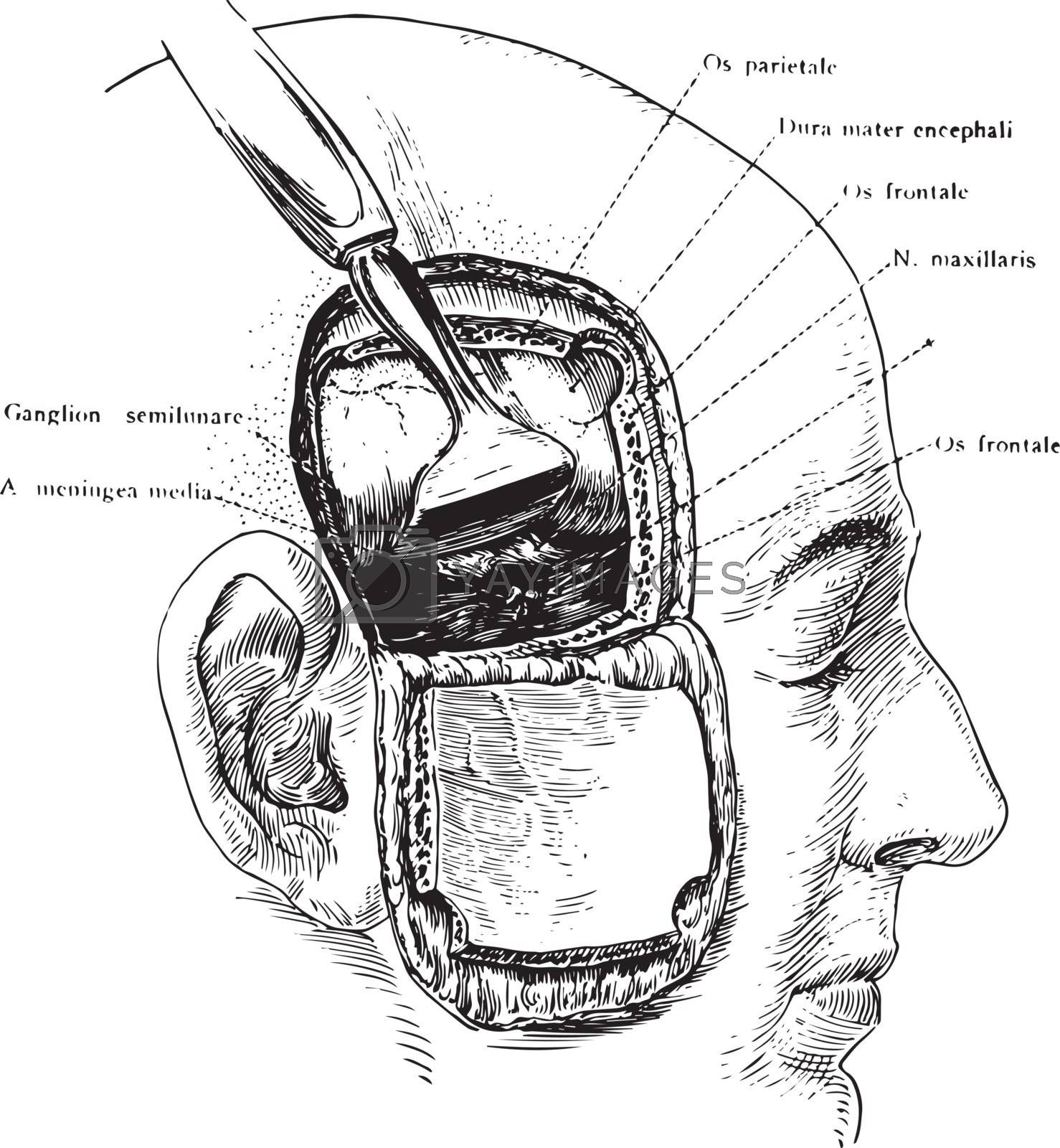 Incision of the Head Showing Gasserian Ganglion, vintage illustr by Morphart