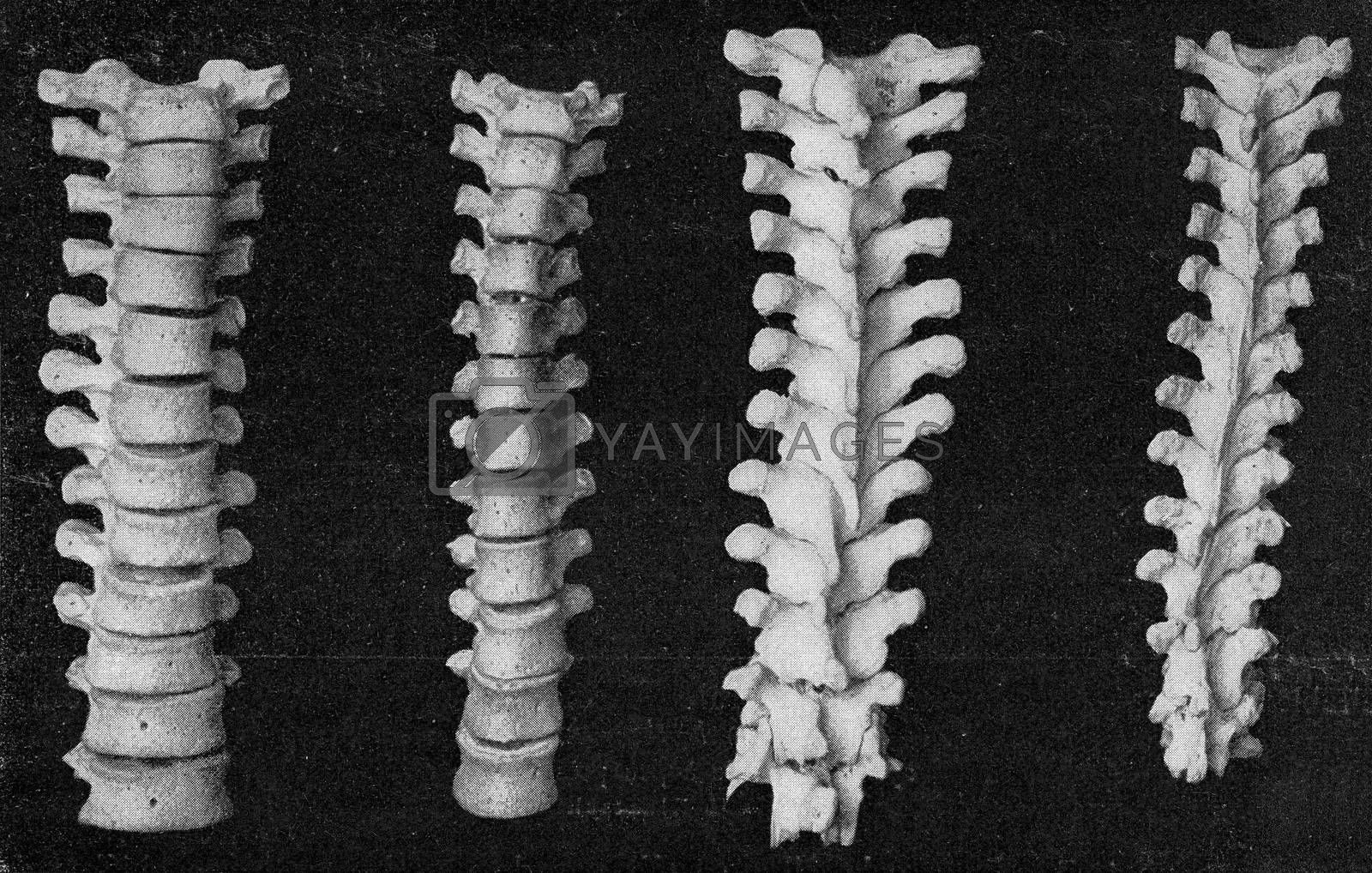 Comparative table of the vertebral column of the breast and the femur of a European and an Australian, vintage engraved illustration. From the Universe and Humanity, 1910.