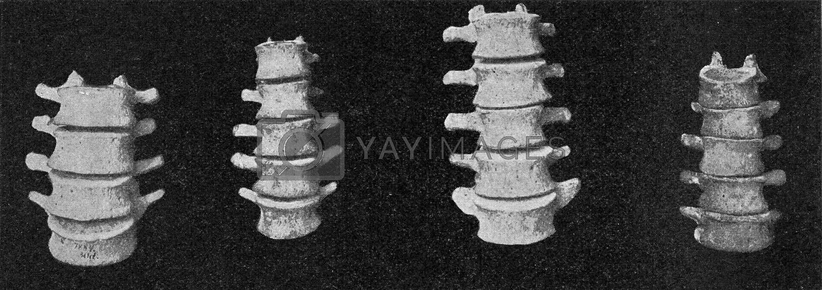 Comparative table of lumbar vertebral columns of a European, an Australian, an African negro and a Dwarf negro of the Philippines, vintage engraved illustration. From the Universe and Humanity, 1910.