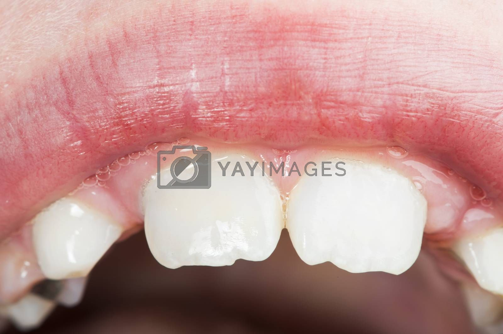 Children's mouth and teeth. Close up studio shot.