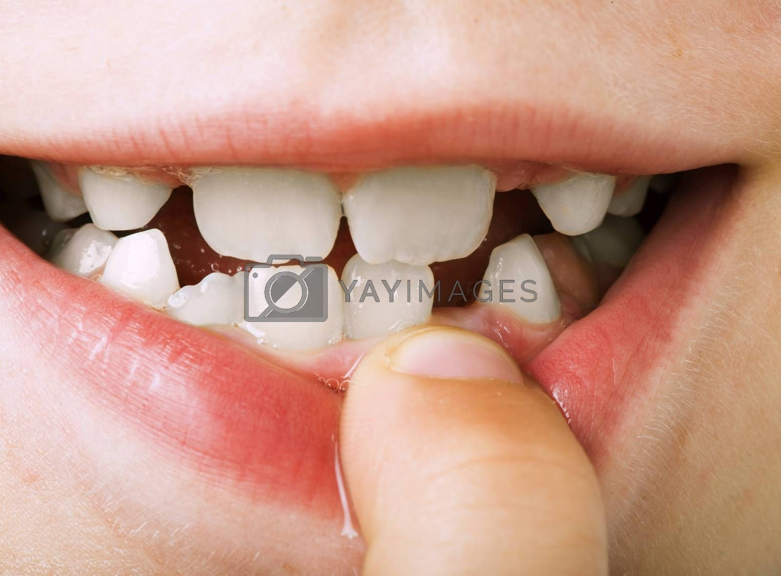 Child shows tooth. Close up studio shot.