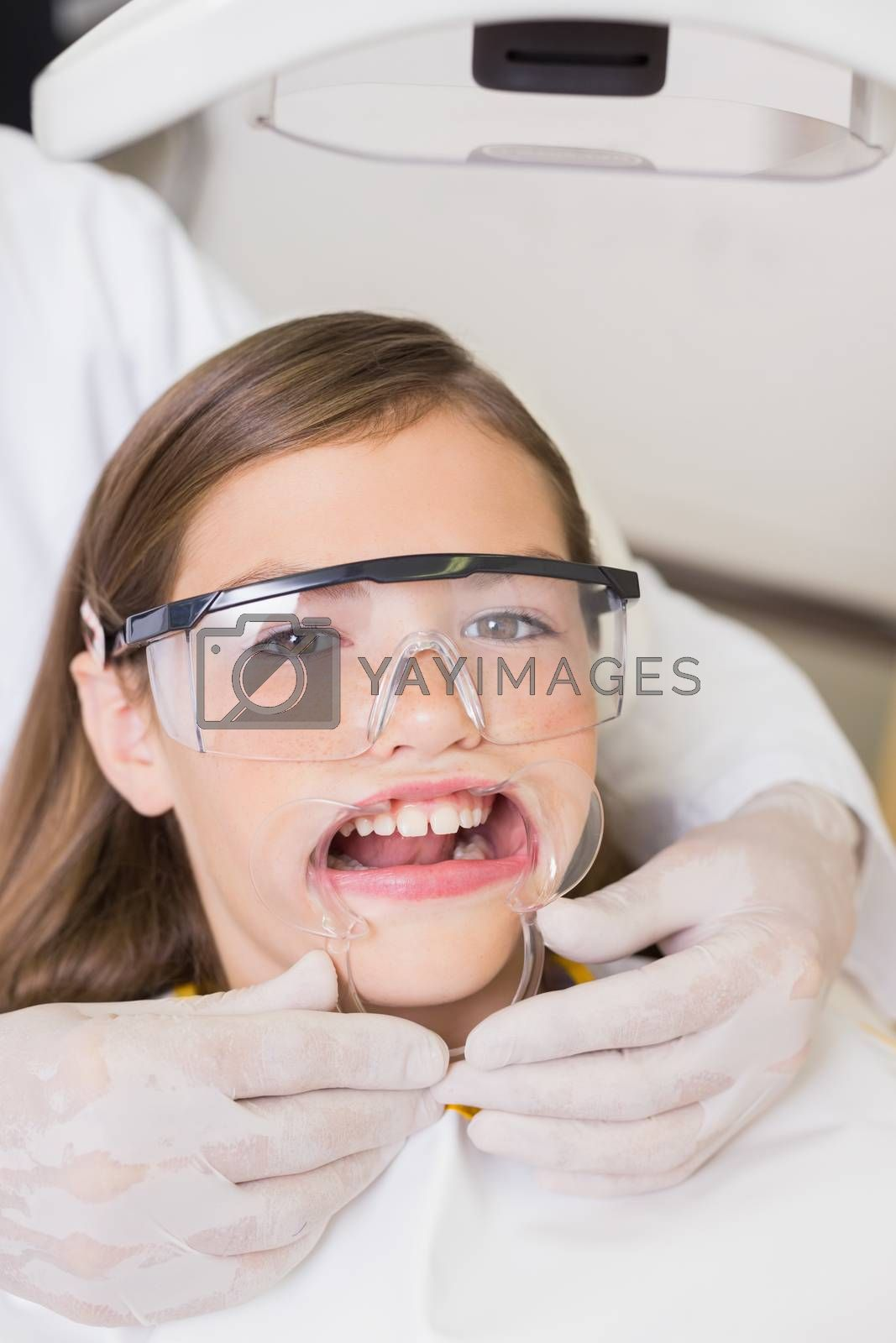 Dentist putting mouth retractor on little girl at the dental clinic