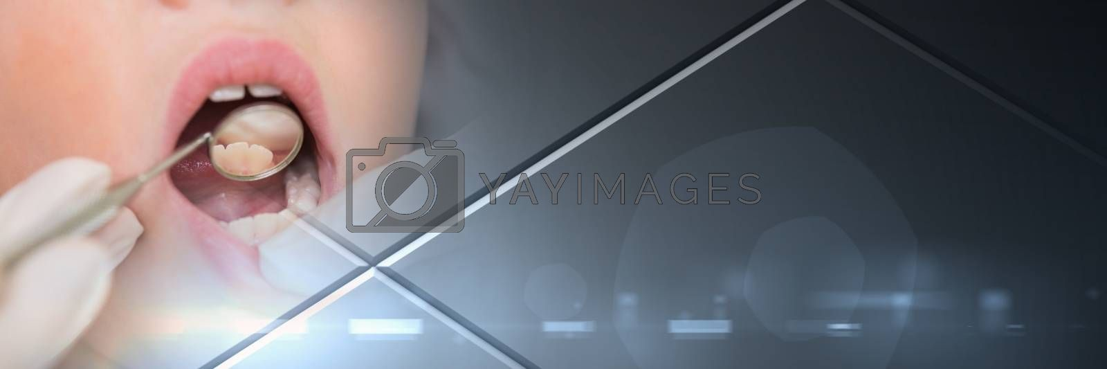 Digital composite of Close up of dentist working on patient's mouth and grey smart tech transition