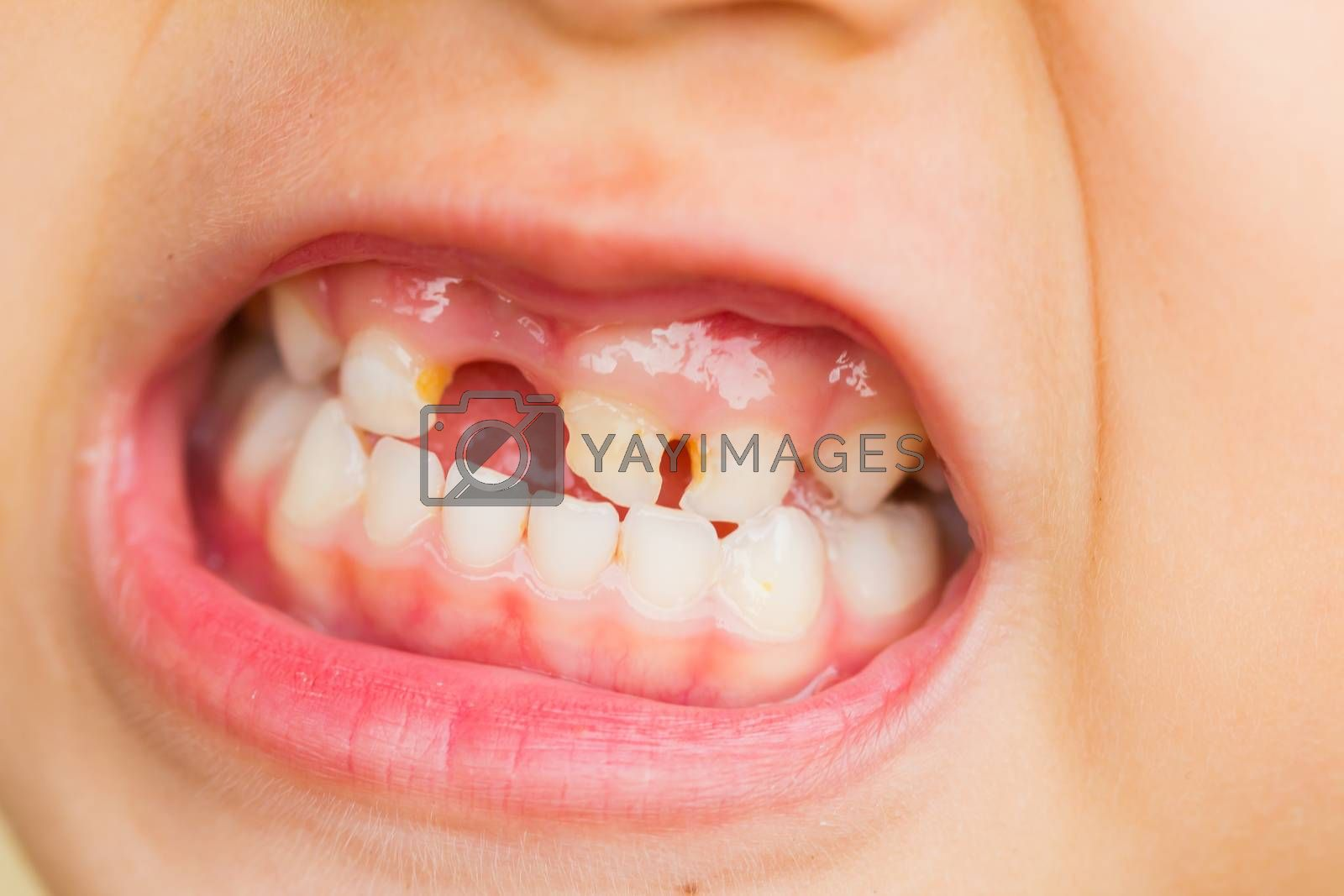 selective focus broken teeth of asian little girl by TawatchaiKH
