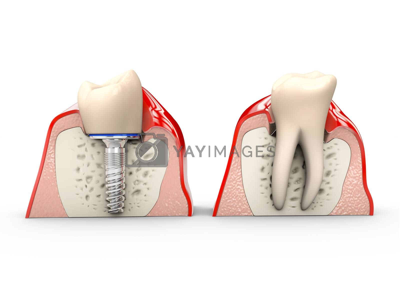 Human teeth and Dental implant 3d Illustration by tussik