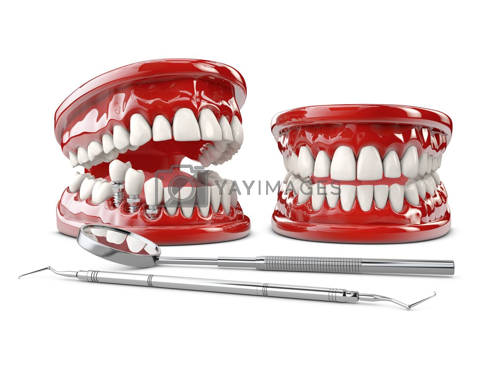 Tooth human implant. Dental concept 3d illustration.