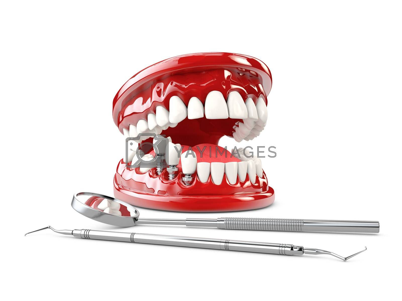 Tooth human implant, Dental concept 3d illustration.