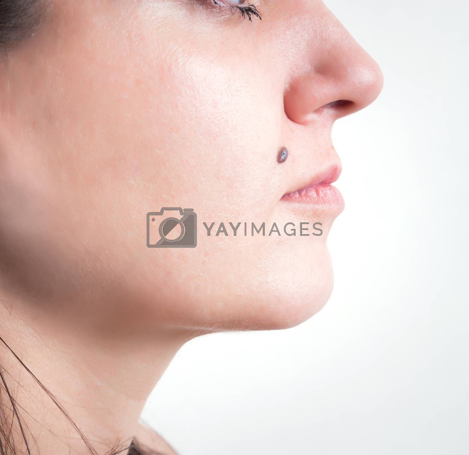Mole on the face of woman