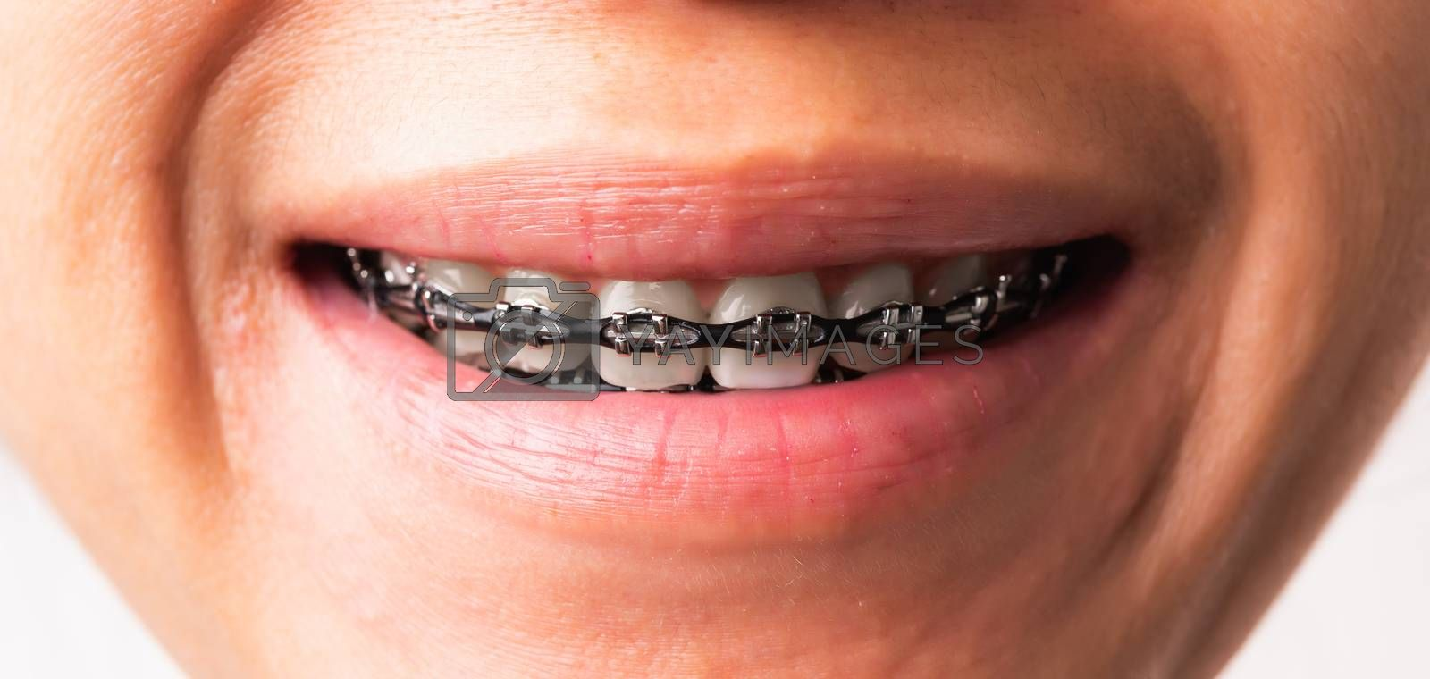 Woman smile show mouth with white teeth with black brackets brac by Sorapop