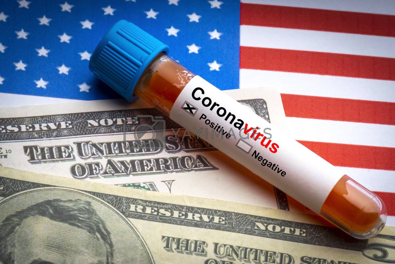 CORONAVIRUS COVID-19 text, US Dollar and blood sample vacuum tube on America flags background. Covid-19 or Coronavirus Concept
