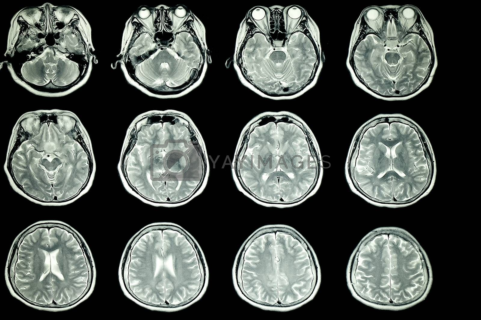 MRI scan of patient brain by Nawoot