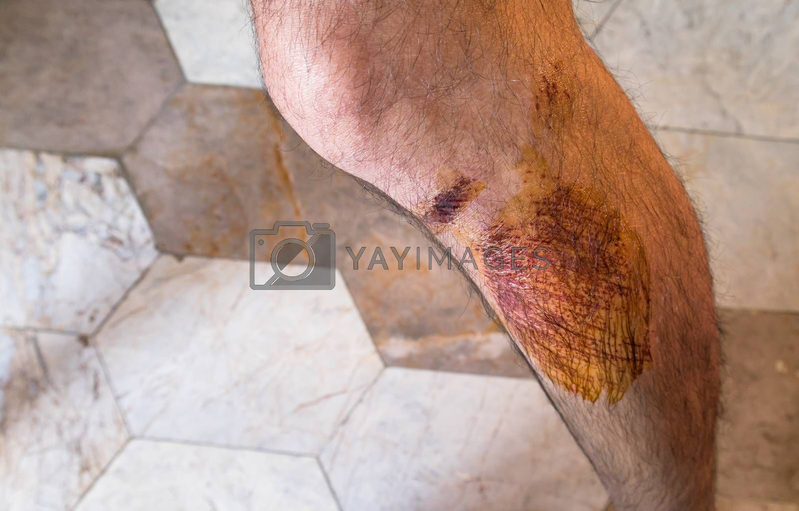 Close up of Man with scab wound on the leg
