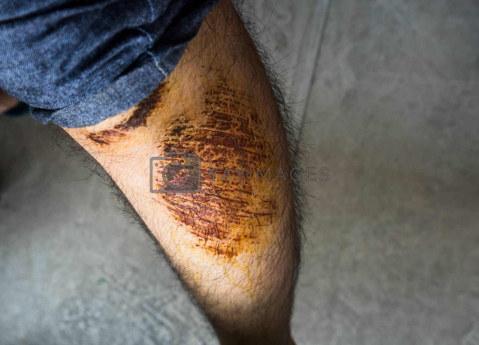 Man with large scab wound on his left leg close up shot