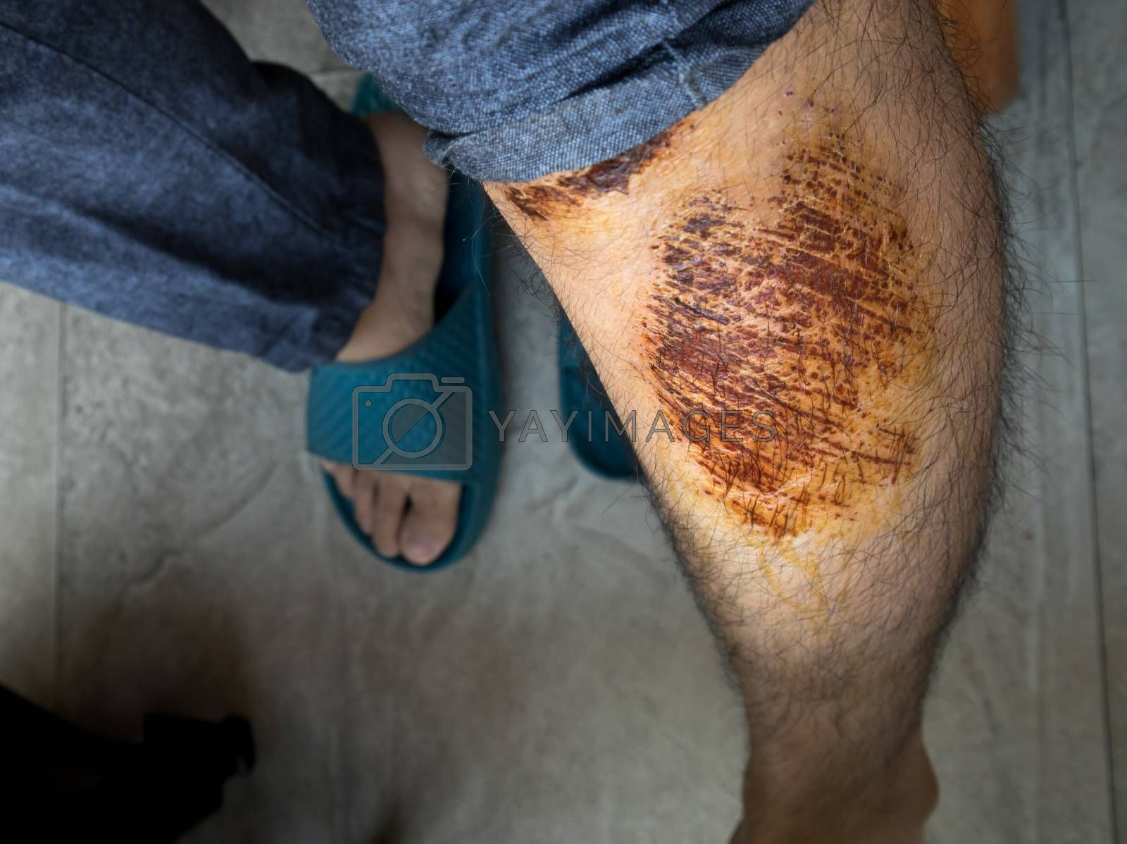 Man with scab wound on his  leg from accident close up shot
