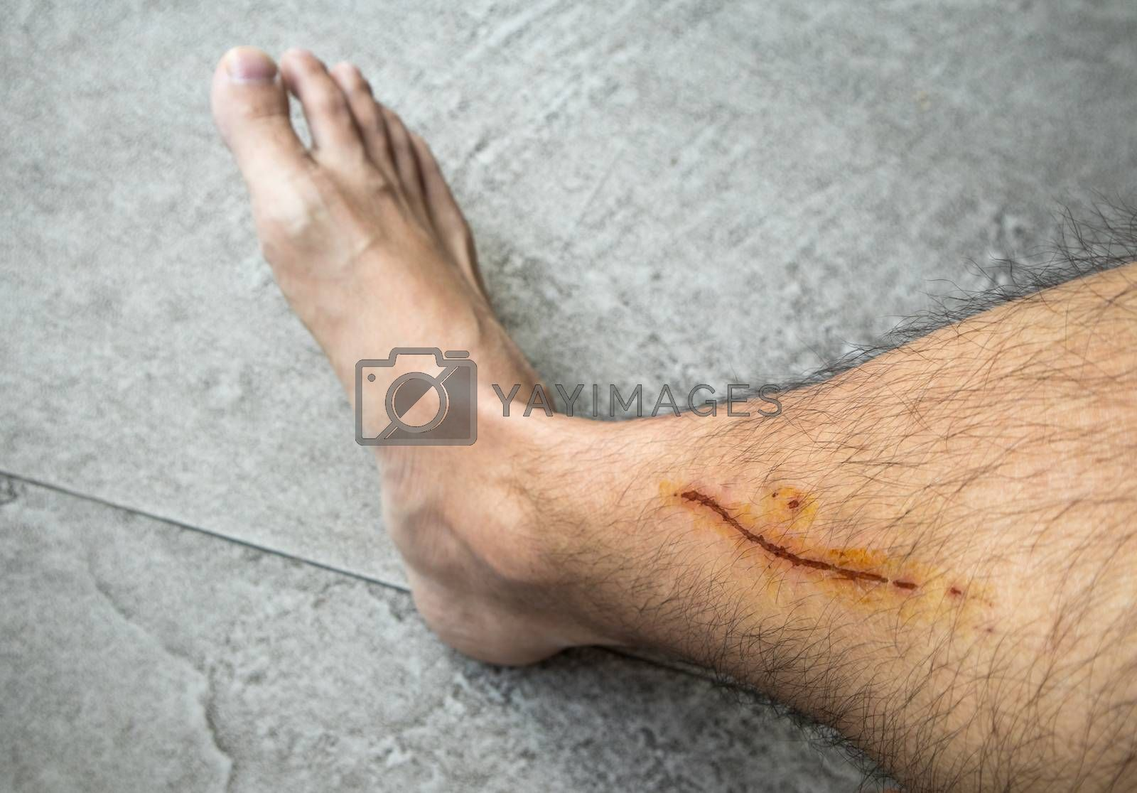 Man with long scab wound on his right leg close up shot bare foot