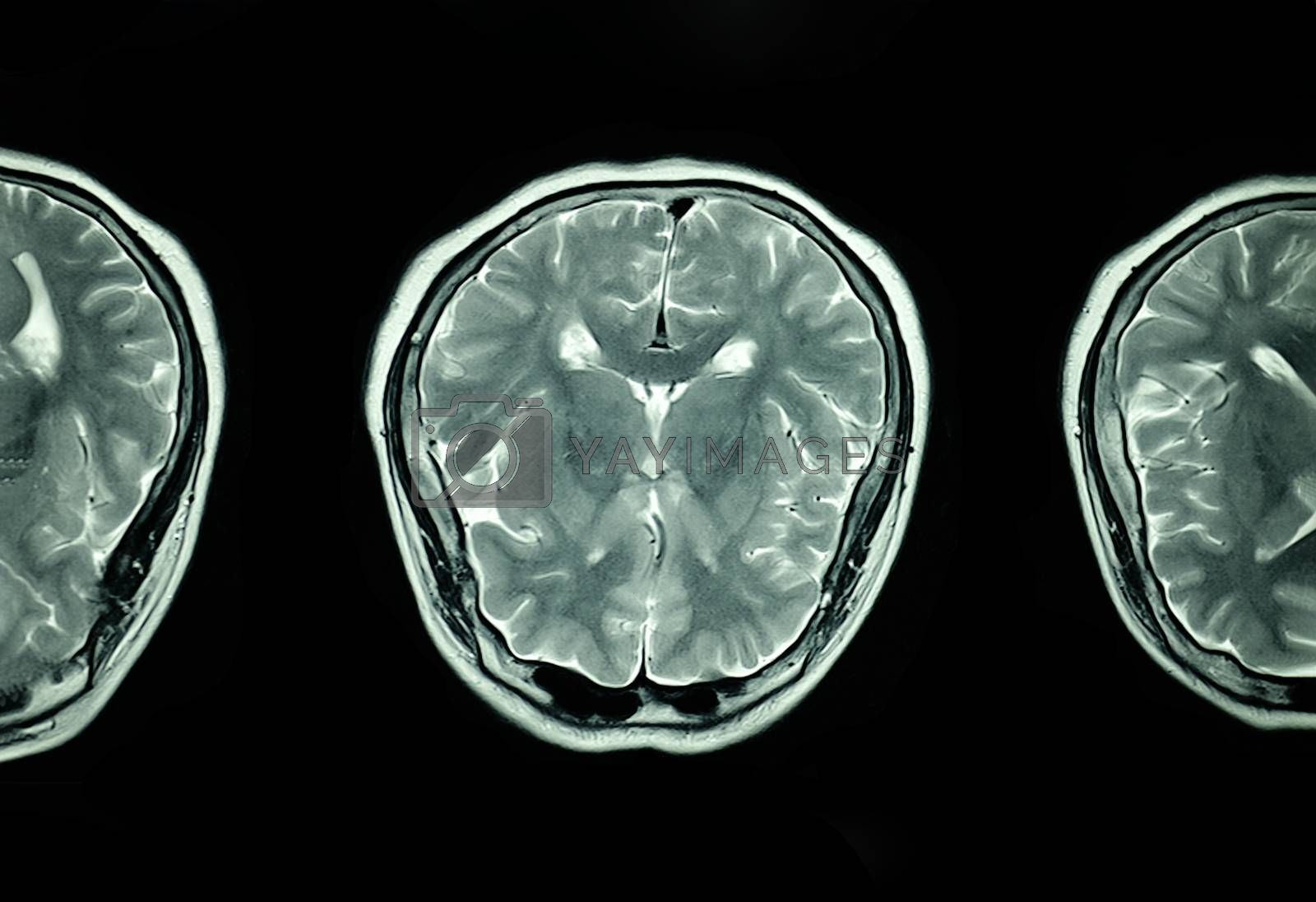 MRI scan of the brain by Nawoot