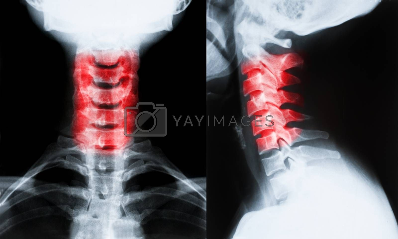 Royalty free image of X-ray image of neck by IxMaster